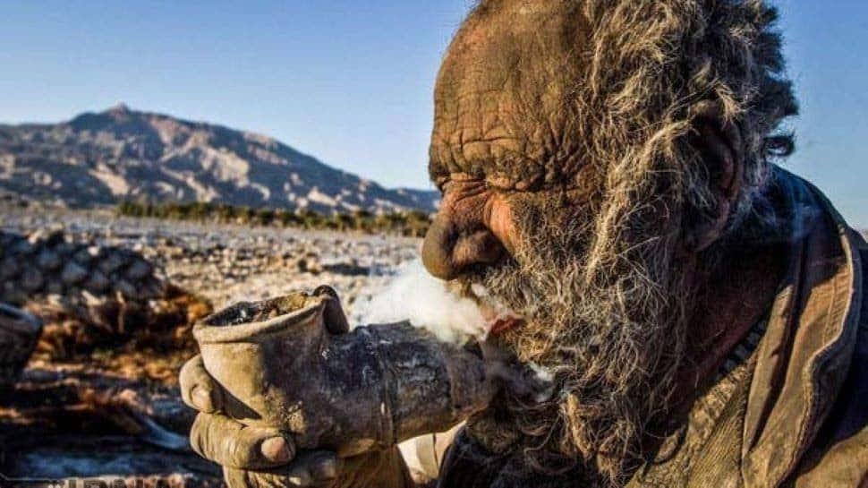 WORLD'S DIRTIEST மனிதன்! 65 ஆண்டுகளாக குளிக்காத காரணம் தெரியுமா?