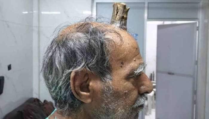 """MP-யில் 74 வயது தாத்தாவின் தலையில் முளைக்கும் """"பிசாசின் கொம்பு""""..."""