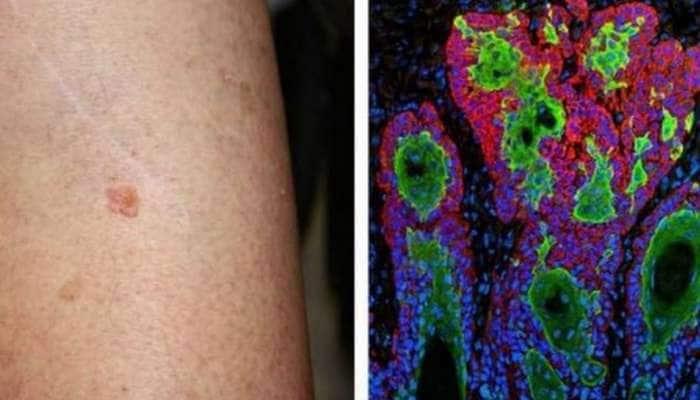 Skin Cancer சிகிச்சையில் இந்திய ஆராய்ச்சியாளர்கள் அடைந்த மாபெரும் வெற்றி!!