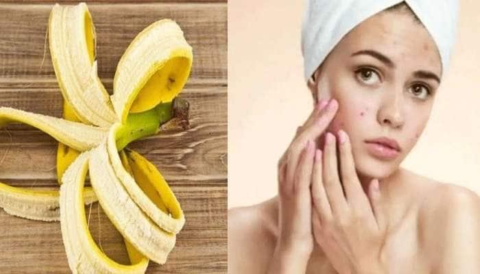 Health Tips: தலை முதல் கால் வரை வாழைப்பழத் தோலால் ஏற்படும் ஆரோக்கிய நன்மைகள்