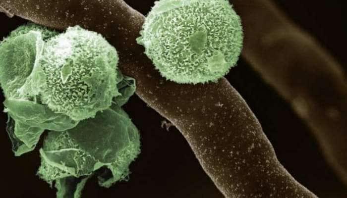 Green Fungus: இந்தியாவில் முதன்முதலாக ஒருவருக்கு பச்சை பூஞ்சை நோய் உறுதி செய்யப்பட்டது